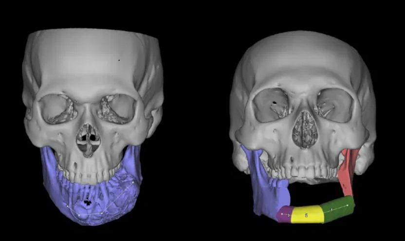 A cirurgia envolve a remoção de ossos da mandíbula e a substituição por um conjunto complexo de próteses que deve ser testada várias vezes antes do implante.