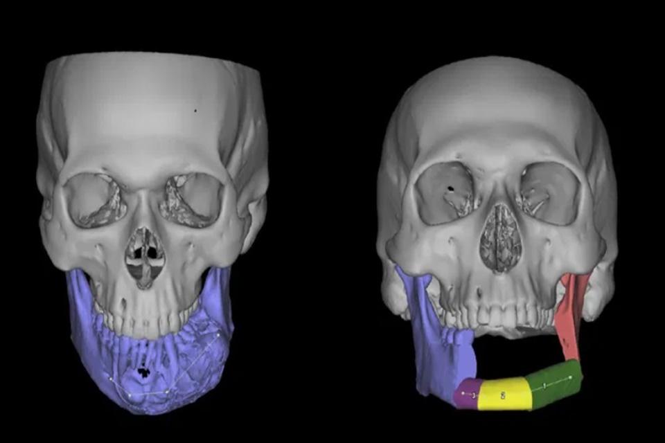 Hospital da USP faz cirurgia com ajuda de modelos impressos em 3D
