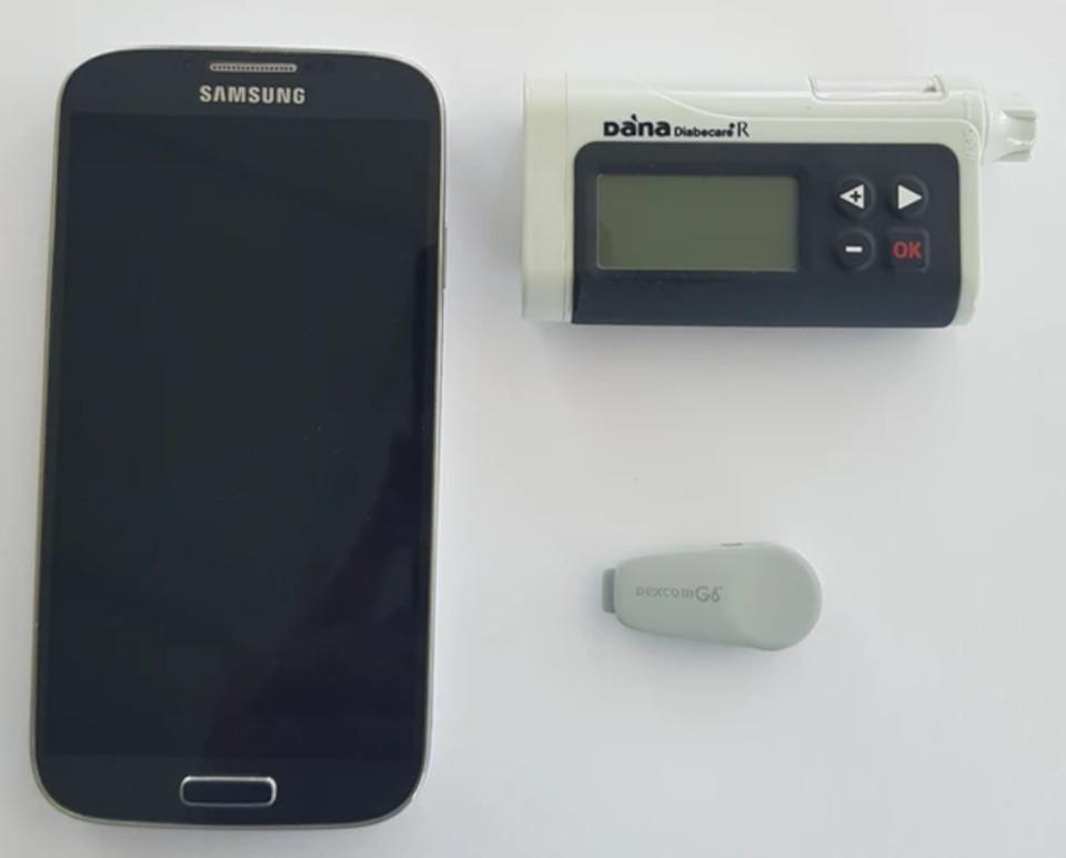 """""""Pâncreas artificial"""" é um sistema que tem três componentes: um sensor, uma bomba de insulina e um aplicativo de celular (Fonte: Universidade de Cambrigde/Divulgação)"""