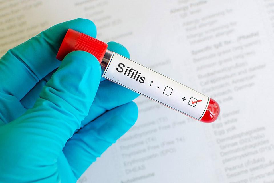 Sífilis: sociedade médica aponta falta de notificação de casos da doença