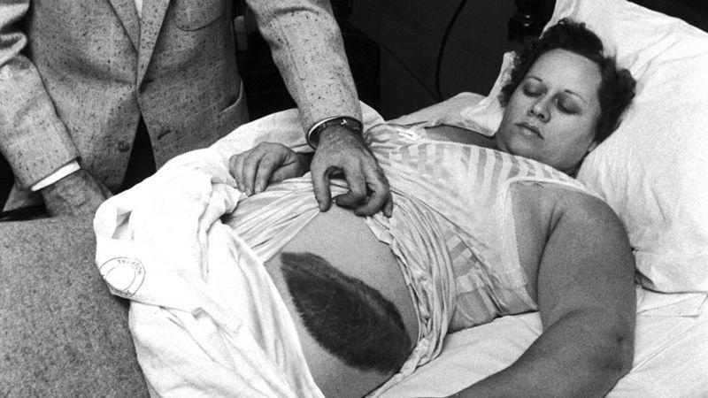 Ann Hodges and the meteorite impact hematoma