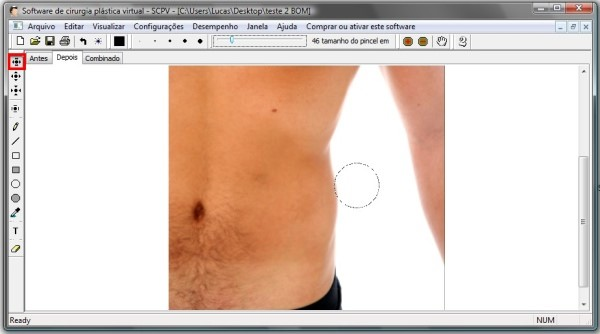 Software de Cirurgia Plástica Virtual