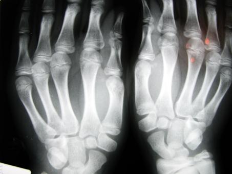 Scanner de ossos seria mais rápido e eficiente.