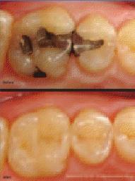 Restauração antiga em comparação com aquela que utiliza a nanotecnologia.