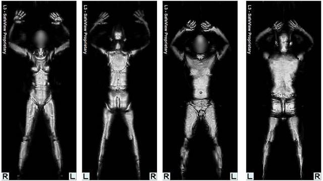 Imagens de scanner corporal