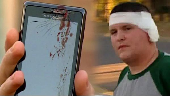 Rapaz machucado pela explosão de Motorola Droid