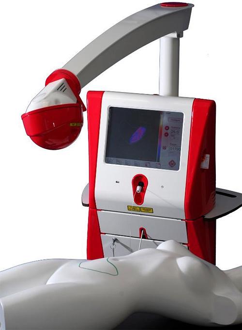 Sistema de Lipo-Controle a Laser