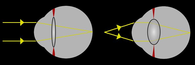 Formação invertida das imagens